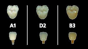 Рис. 8 VITA-оттенки A1, D2 и B3