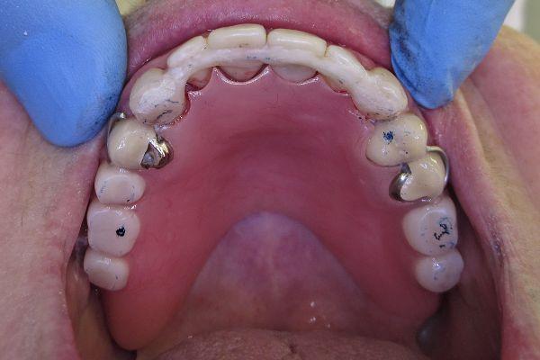 Фиксация удаленных зубов шиной в полости рта 2