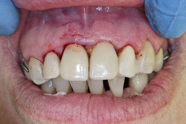 Фиксация удаленных зубов шиной в полости рта 1