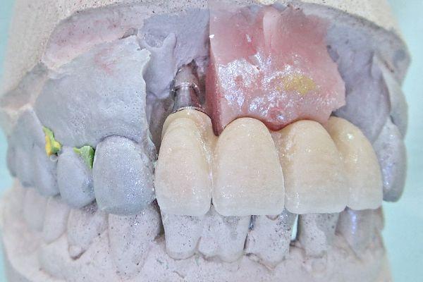 Постоянное протезирование фронтальной группы зубов