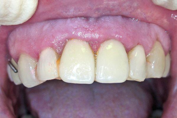 Примерка иммедиат-протеза верхней челюсти и временной шины в полости рта 2