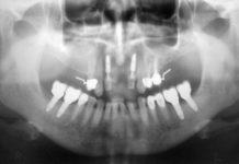 Сохранение контура десневого края в области зубов, подлежащих удалению, при отсроченной имплантации