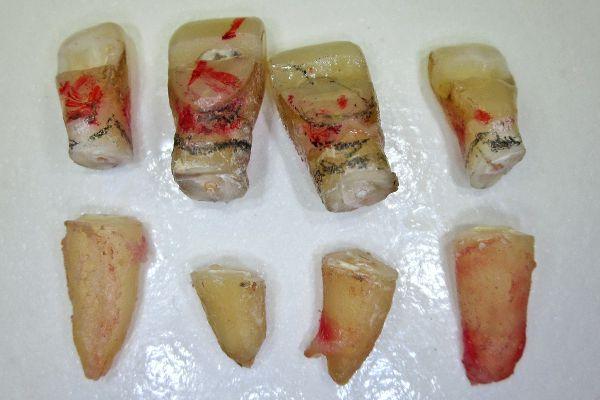 Удаленные зубы с ампутированными корнями