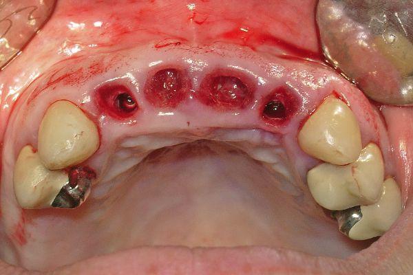 Установленные имплантаты Ankylos в области 12 и 22 зубов