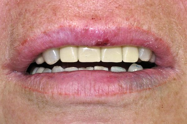 Временный протез в полости рта